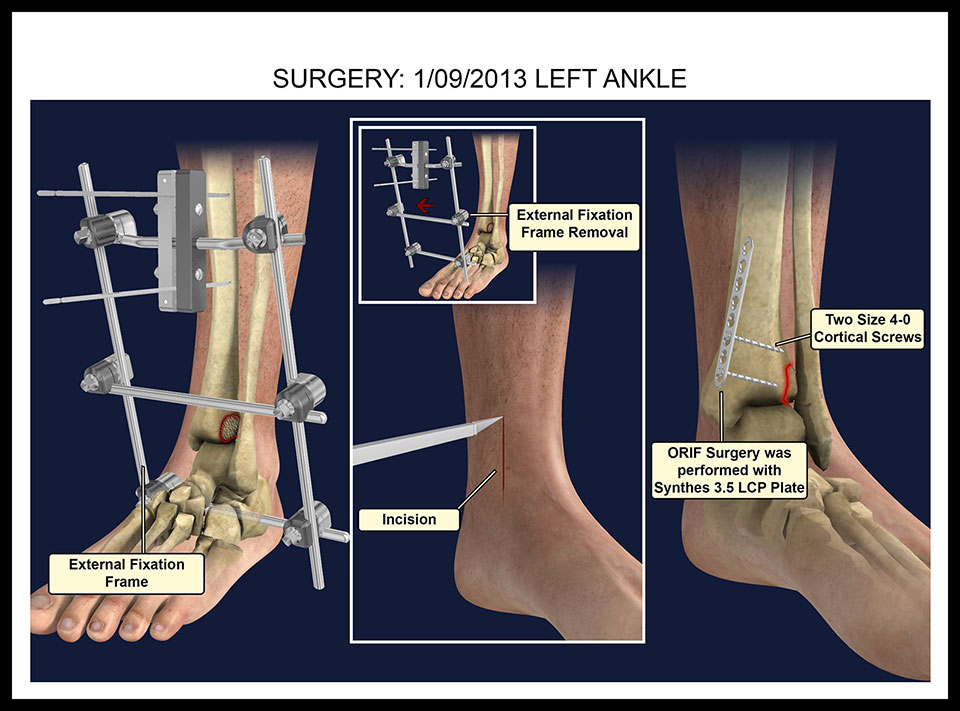 External Fixation and Ankle Plate - 3D Justice, LLC3D